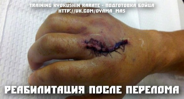 Реабилитация после перелома. Травматизм