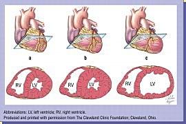 Увеличение размера левого желудочка сердца